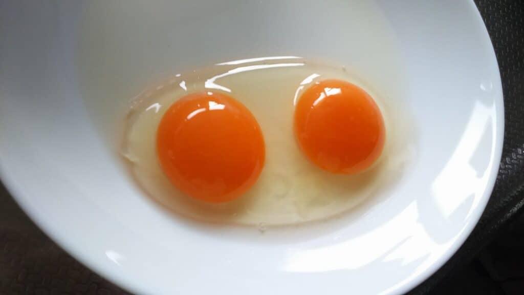 双子妊娠における「膜性」とは