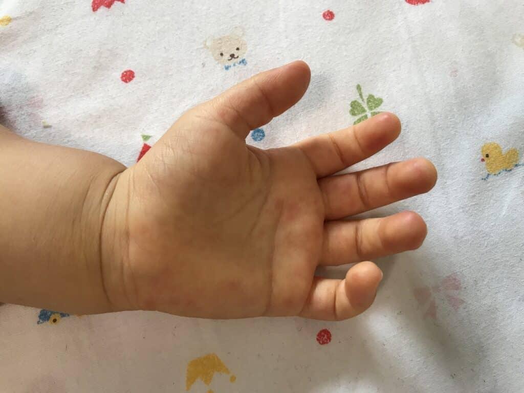 手足口病とは