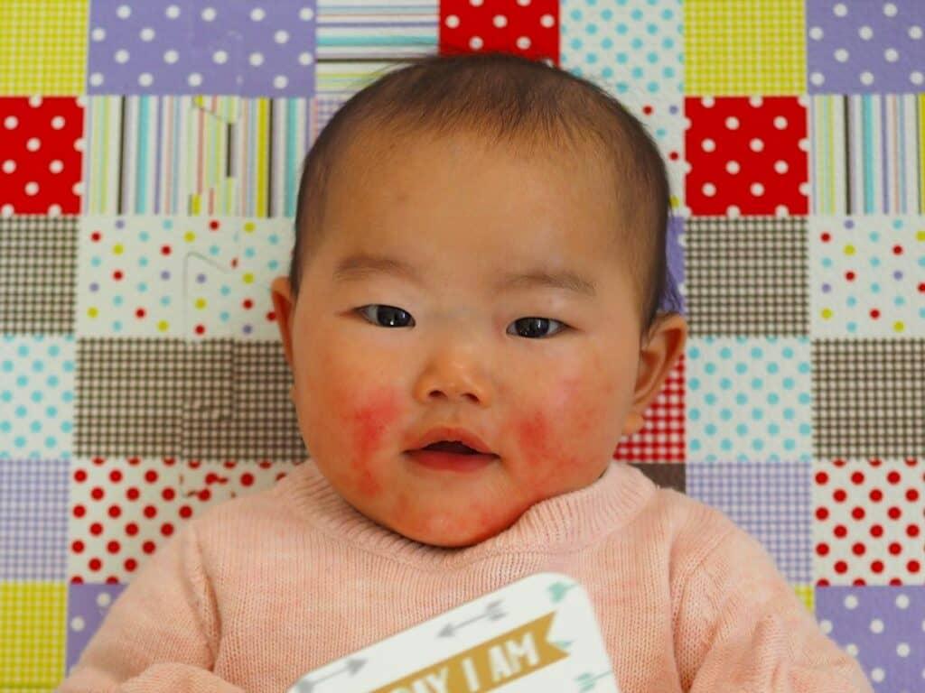 急に赤くなった場合はアレルギー反応の可能性も