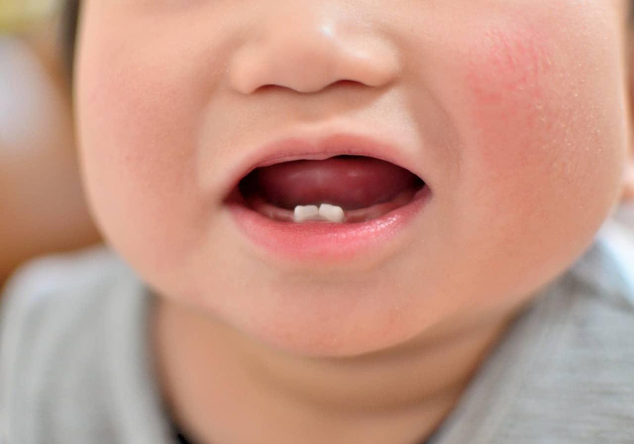 赤ちゃんの乳歯はいつ、生後何ヶ月で生える? 生える時期や生え始めた時の注意点