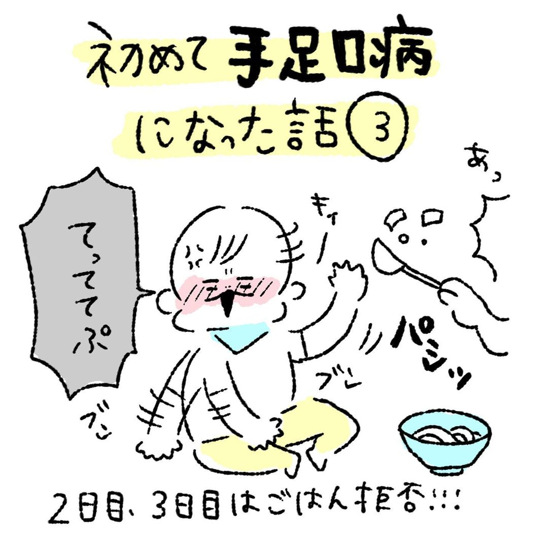 育児絵日記|初めて手足口病になった話#3